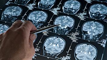 Le repos réparerait des dommages de la commotion cérébrale