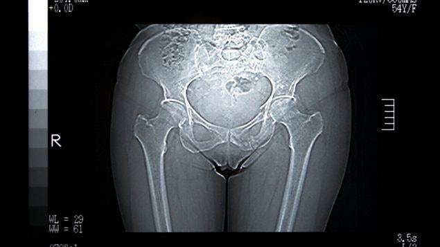 Radiographie du bas du corps d'une femme