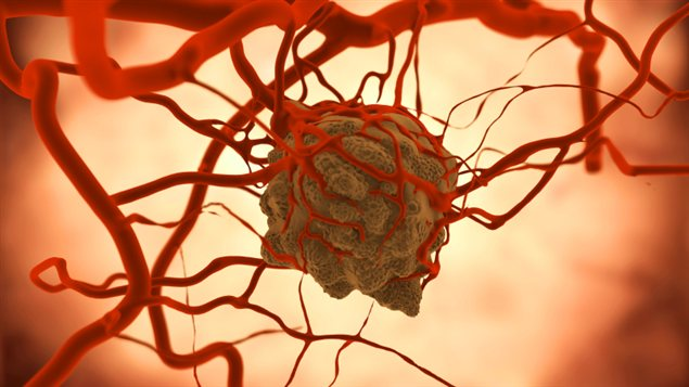 Une tumeur cancéreuse