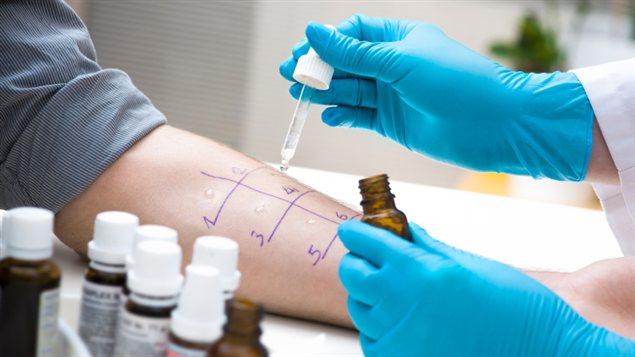 Un test d'allergie