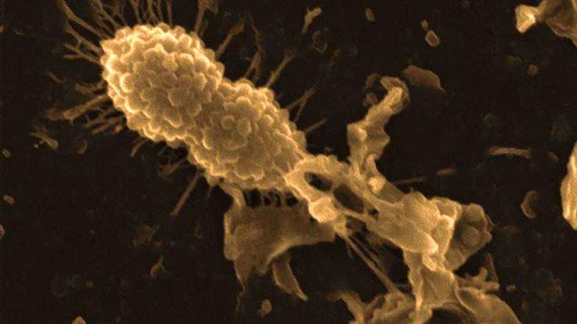 Une bactérie saine de streptocoque de la pneumonie (en haut à gauche) et une bactérie détruite par la protéine alpha lactalbumine modifiée tueuse de cellules tumorales (HAMLET) (à droite)