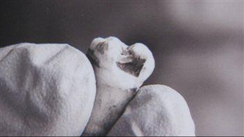 La dent de John Lennon acquise par le dentiste Michael Zuk de Red Deer