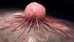 Une partie de cache-cache avec le cancer tourne à l'avantage de la science