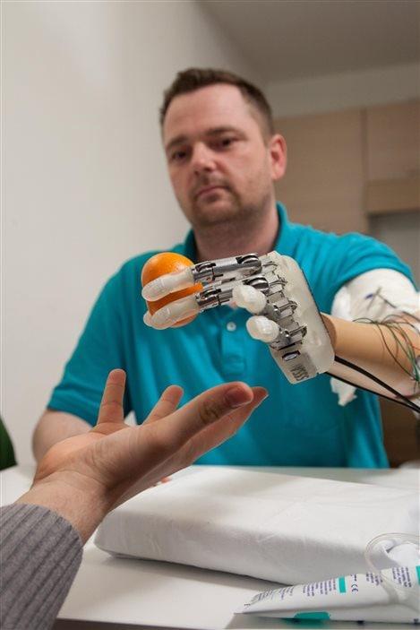Dennis a perdu sa main gauche en manipulant des feux d'artifice lors d'une réunion de famille.