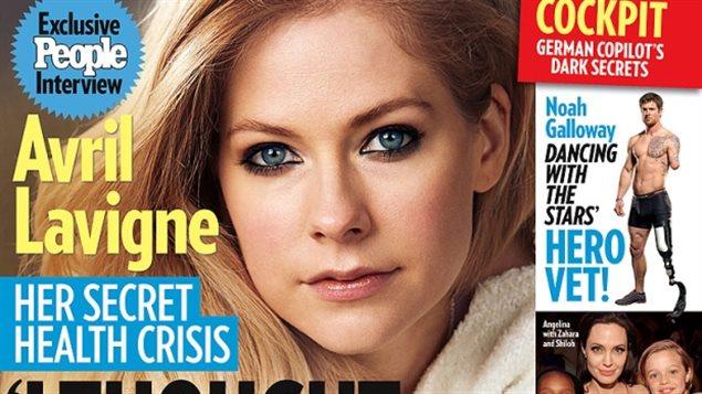 Avril Lavigne a vécu « le pire moment » de sa vie en