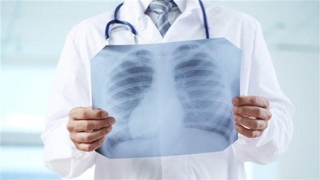 Un médecin regarde la radiographie d'une cage thoracique.