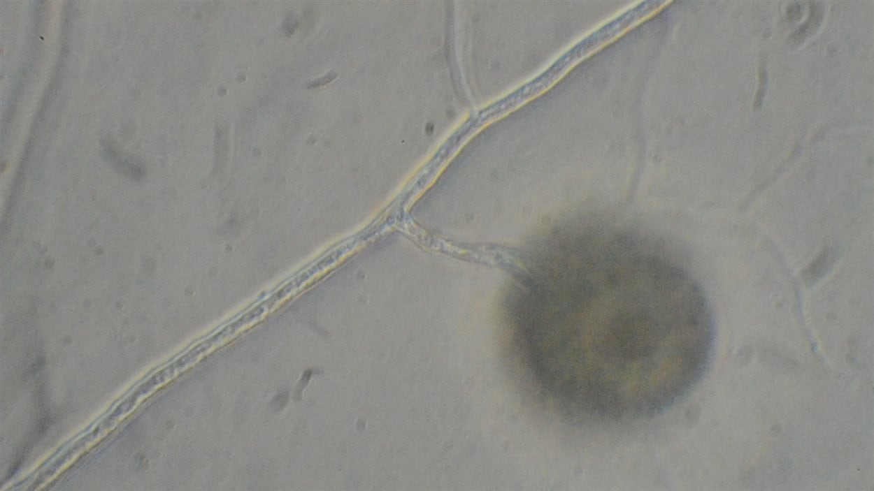 Spores mycorhizes