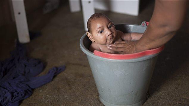La brésilienne Solange Ferreira, une femme infectée par le virus Zika, a donné naissance à Jose, atteint de microcéphalie.