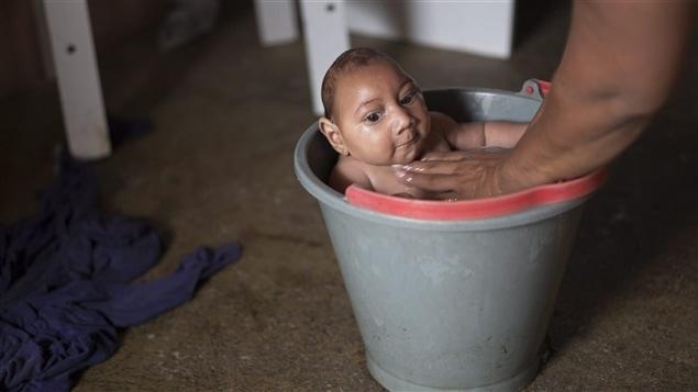 Bébé brésilien atteint de microcéphalie, né d'une mère infectée par le virus Zika