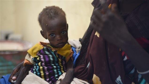 Nyagoah Taka Gatluak, un enfant souffrant de malnutrition attend la visite du docteur en compagnie de sa mère dans une clinique de Médecins sans frontières de la ville de Leer, au Soudan du Sud.
