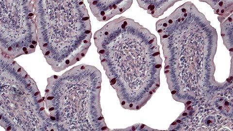 Villosités intestinales