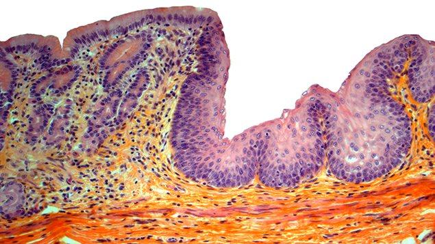 Jonction de l'oesophage et de l'estomac