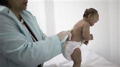 La microcéphalie ne suffit pas à diagnostiquer le virus Zika