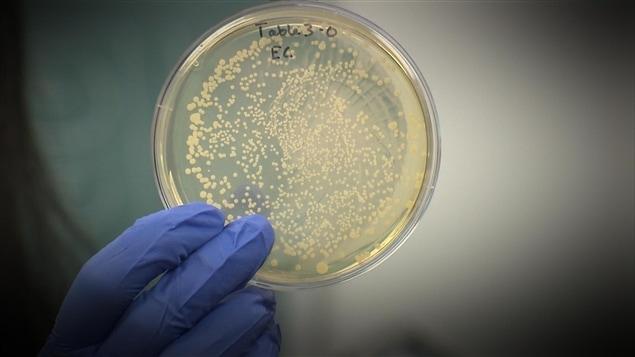 La bactérie Listeria