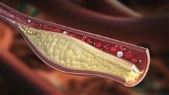 De nouveaux médicaments contre le cholestérol posent un problème de prix
