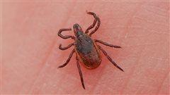 La maladie de Lyme contractée en ville comme à la campagne