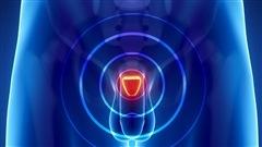 Cancer de la prostate : la surveillance active préférée au traitement