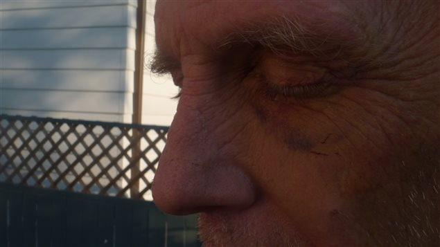 Neil Ryley dit avoir pris cette photo d'un oeil au beurre noir le 7 juillet, après être sorti de prison.