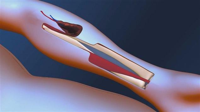 La glande thyroïde est implantée dans le bras du patient au niveau du creux de son coude.