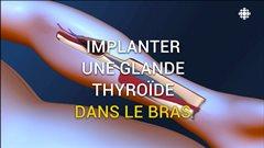 Implanter la glande thyroïde dans le bras