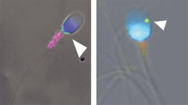 Le virus zika détecté dans les spermatozoïdes