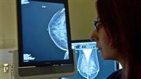 L'image du mammographie sur un écran