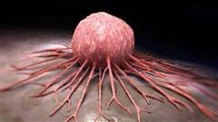 Un nouveau type de cancer inquiète la Société canadienne du cancer