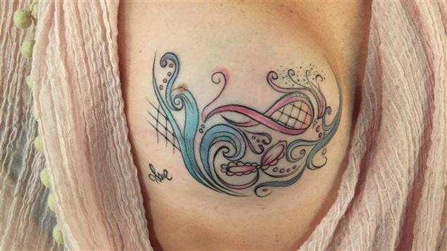 Un tatouage sur un sein reconstitué