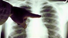 Le Manitoba a le plus haut taux de tuberculose des provinces canadiennes