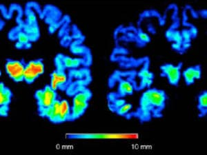 cerveau-alzheimer-cortex