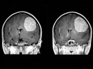 Les tumeurs au cerveau pourront éventuellement être traitées par des faisceaux de neutrons.