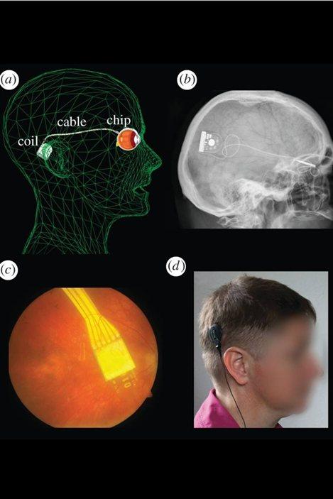 Schéma, radiographie et photos montrant l'emplacement de l'implant, du câble et de l'appareillage