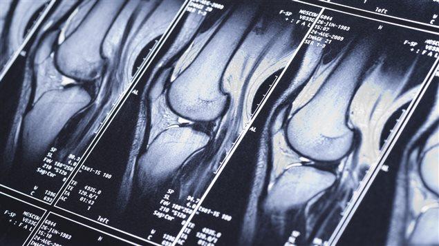 Radiographies suite à une blessure