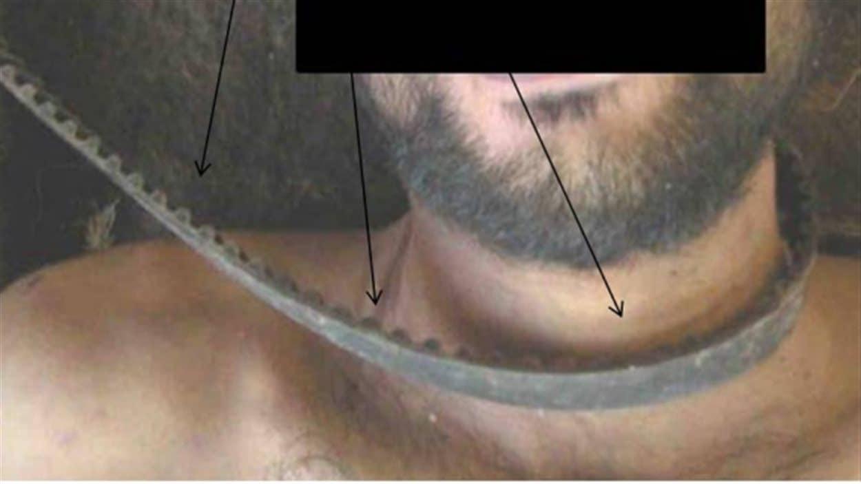 Une photo du rapport montrant un cadavre avec une sorte de corde autour du coup.