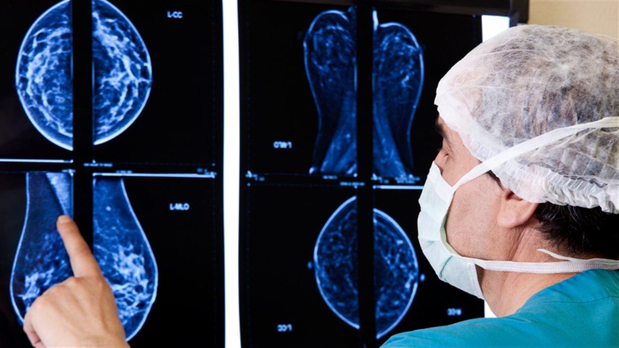 cancer du sein la double mastectomie est souvent inutile ici radio. Black Bedroom Furniture Sets. Home Design Ideas