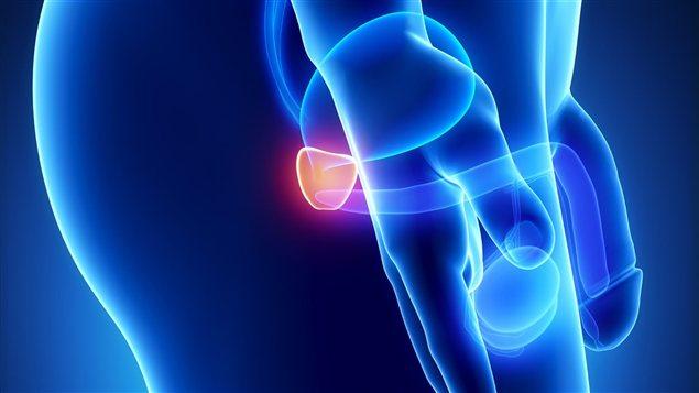 Cancer de la prostate la circoncision pr viendrait for Lien dans une nouvelle fenetre