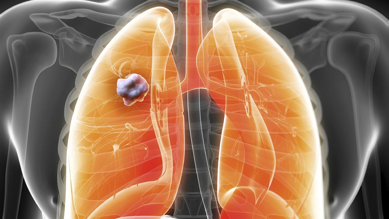 Une tumeur pulmonaire