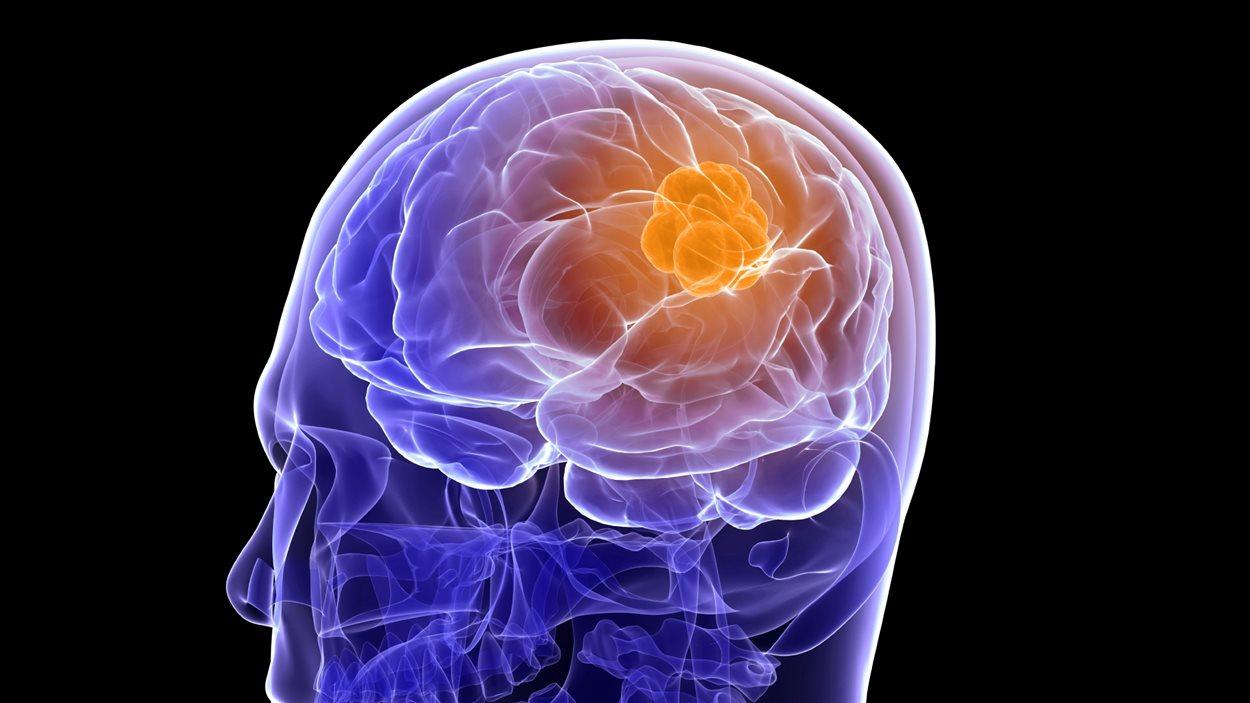 Une tumeur au cerveau