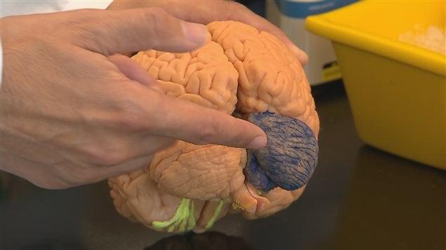 Les chercheurs ont décelé la protéine dans le cervelet