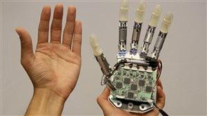 Les premières prothèses bioniques pour personnes amputées