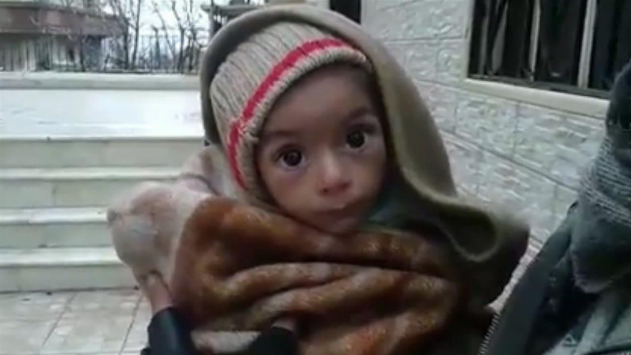 Des images ont fait surface dans les derniers jours sur les réseaux sociaux montrant des enfants syriens amaigris jusqu'aux os.