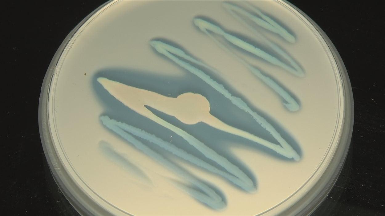 Évolution de la digestion de l'apatite par une bactérie en laboratoire. Photo 3