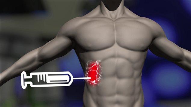 Un nouveau biogel contre le cancer permet une attaque plus ciblée.