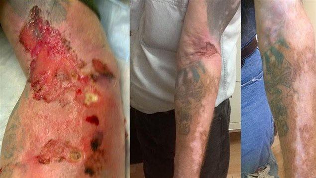 À gauche, le bras de Terry Steeves à l'époque où il s'injectait des drogues; à droite, son bras aujourd'hui.