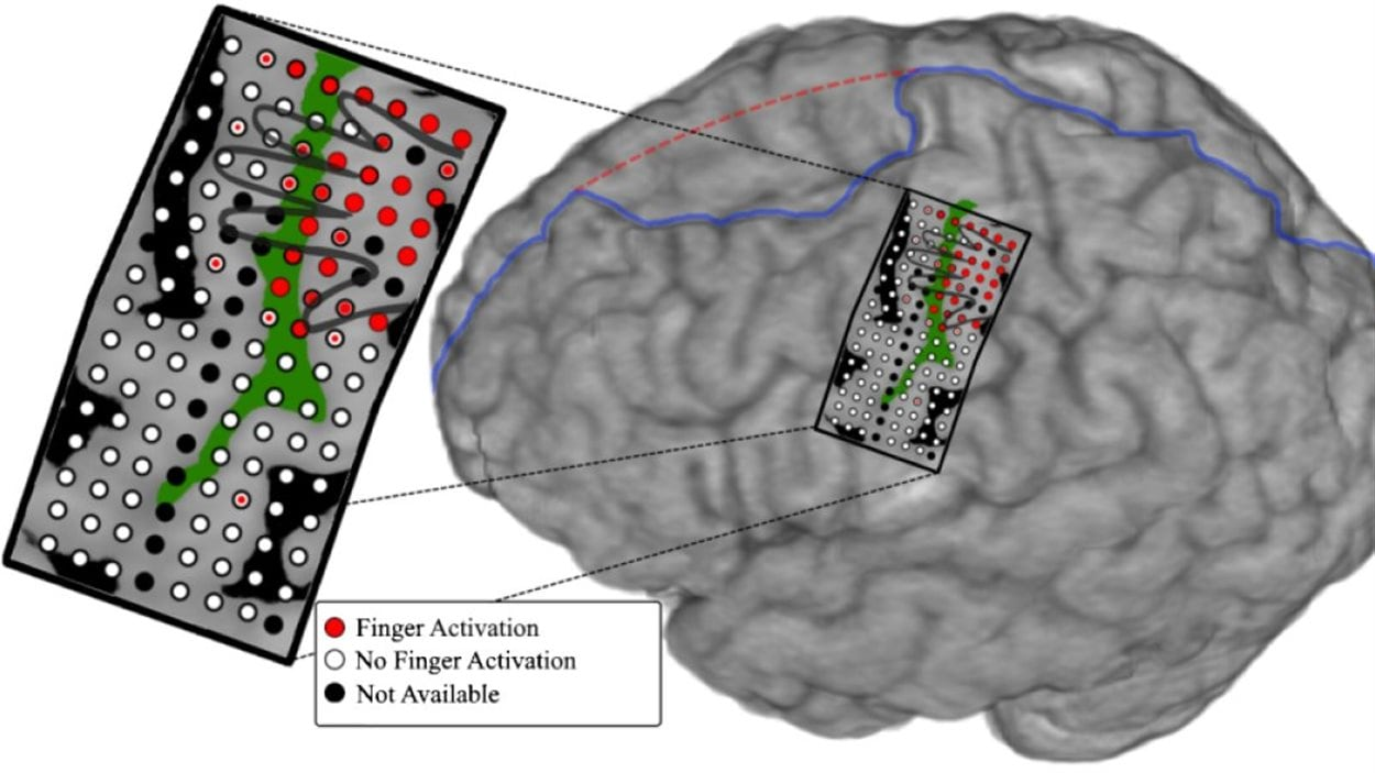 Illustration montrant le réseau d'électrodes placé sur le cerveau du sujet, et représentation de quelle partie du cerveau contrôle chaque doigt.