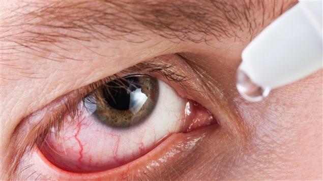 Pour combattre la sécheresse oculaire, il faut cligner des yeux !