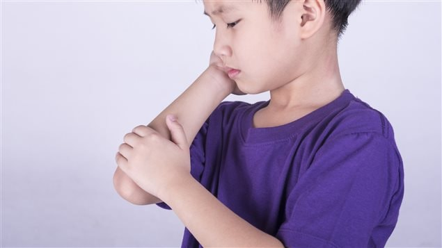 L'arthrite juvénile touche un nombre grandissant d'enfants