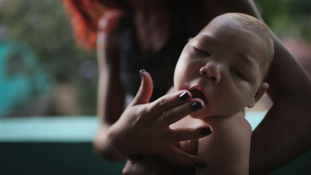 Zika, un virus transmis par un moustique, entraîne des malformations dévastatrices dont la microcéphalie.