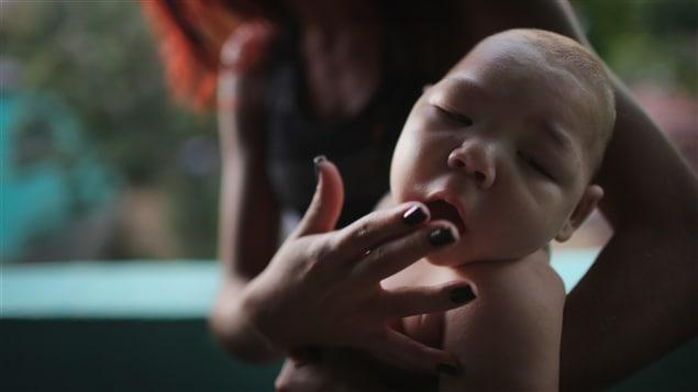 Zika, un virus transmis par un moustique, entraîne des malformations dévastatrices, dont la microcéphalie.